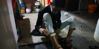 Faizan wears a cast to support his right foot | Photo: Manisha Mondal | ThePrint